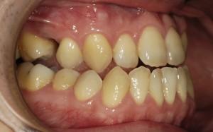 無理やり矯正だけで治療した治療前の歯並び