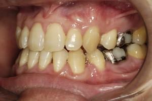 無理やり矯正だけで治療した治療後の歯並び