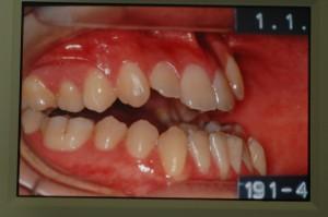 外科手術を併用した矯正治療の治療前の歯並び