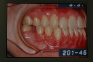 外科手術を併用した矯正治療の治療後の歯並び
