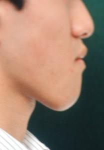 外科手術を併用した矯正治療の治療前の口元