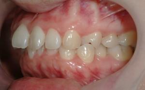 デコボコな前歯の矯正