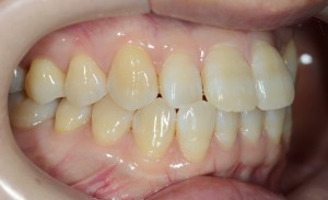 デコボコの審美歯科治療前