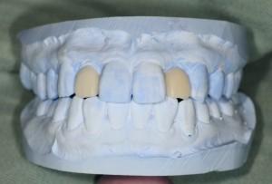 審美歯科で歯並びをキレイにするシミュレーション