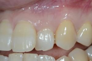 歯周形成外科の術前