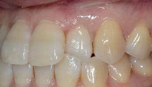 歯周形成外科の治癒後