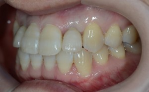 セラミックで歯並びを変える審美歯科治療後