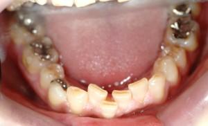 デコボコ(乱杭歯)の矯正前