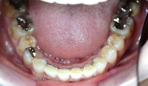 デコボコ(乱杭歯)の矯正後