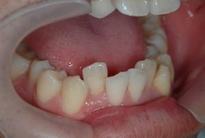 出ている前歯の審美治療前