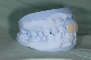 審美歯科のシミュレーション