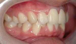 審美歯科の治療中(仮歯)