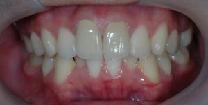 出ていた前歯の審美歯科の治療後