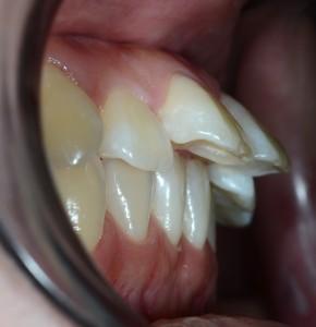上顎前突の矯正前