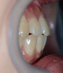 上顎前突の矯正後
