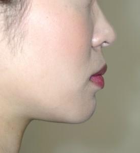 非抜歯による矯正後の口元