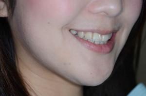 矯正後の笑顔