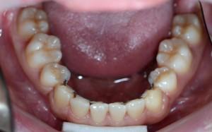 すきっ歯の矯正後