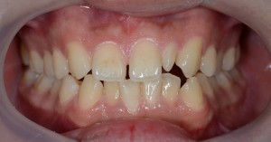 すきっ歯の矯正前