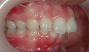 上顎前突(出っ歯)の矯正前