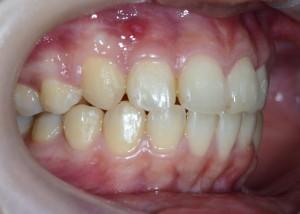 上顎前突(出っ歯)の矯正後