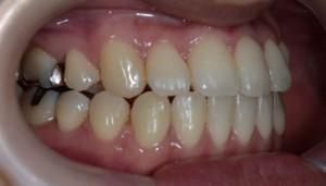前歯のガタガタ(八重歯)の矯正後