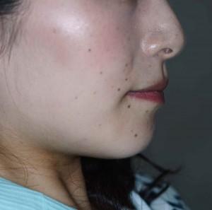 前歯のガタガタ(八重歯)の矯正後の口元