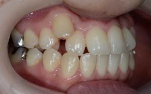 前歯のガタガタ(八重歯)の矯正前
