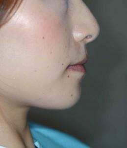 前歯のガタガタ(八重歯)の矯正前の口元