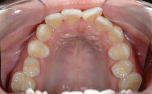 出っ歯でガタガタしている前歯の矯正前