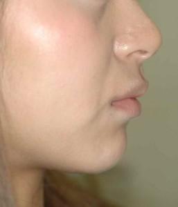 出っ歯でガタガタの前歯の矯正前の口元