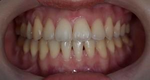 出っ歯でガタガタの前歯の矯正後
