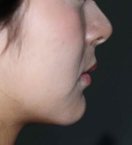 出っ歯でガタガタの前歯の矯正後の口元
