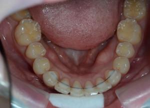 出っ歯(上顎前突)の矯正後