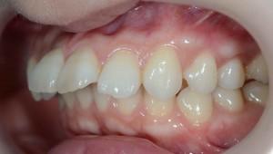 出っ歯(上顎前突)の矯正前