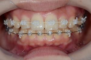 ハーフホワイト矯正での歯の見え方