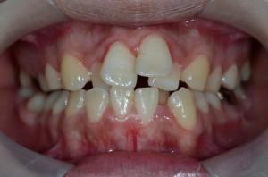 凸凹のひどい歯並び