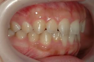 前歯の傾斜は真っ直ぐなのに引っ込めたいと希望されるケースの歯並び