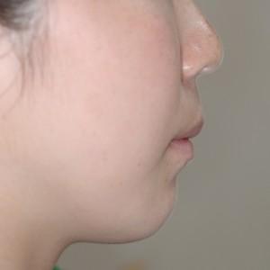 前歯の傾斜は真っ直ぐなのに引っ込めたいと希望されるケース