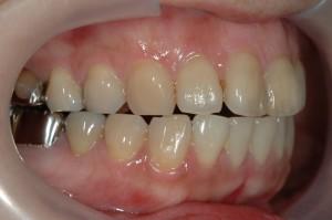 口元が出ている状態の歯並び