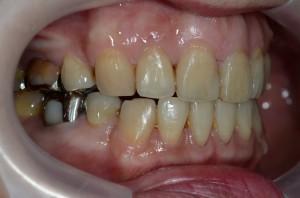 治療したけどまだ口元が出ている状態・・・の歯並び