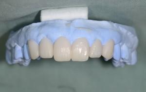芸能人みたいな歯になりたい 審美歯科治療前のシミュレーション