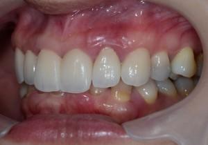 芸能人みたいな歯になりたい 審美歯科治療後