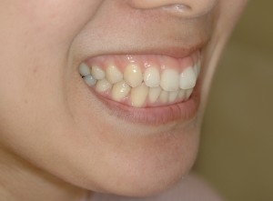 ガミースマイル治療前の笑顔です