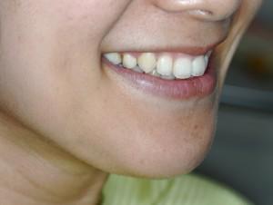 ガミースマイル治療後の笑顔です