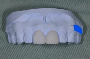 すきっ歯を治すシミュレーション