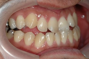 受け口の方の歯並び