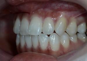 芸能人みたいな歯になりたい 審美歯科治療前