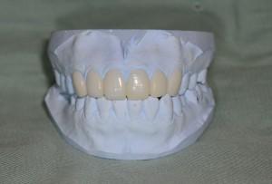 芸能人みたいな歯になりたい シミュレーション