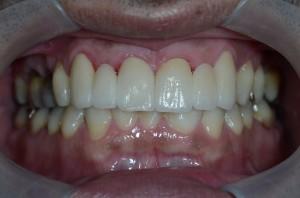 すきっ歯をコンビネーション治療で治した後